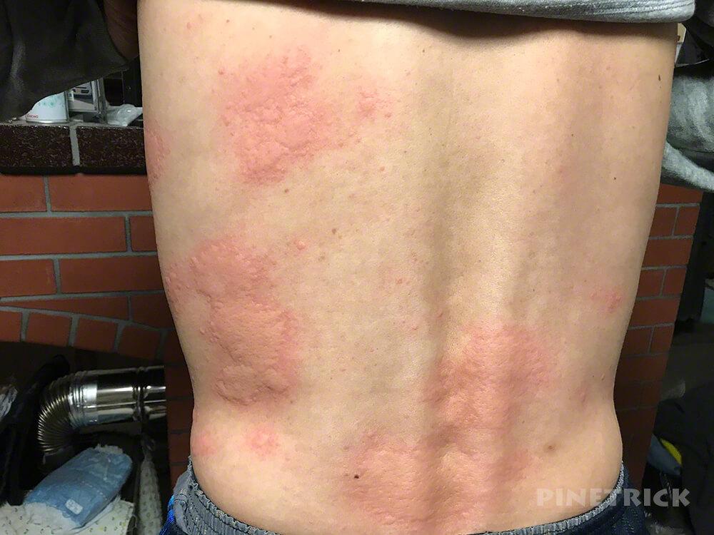 コロナウィルス ワクチン モデルナ 副反応 かゆみ 赤み